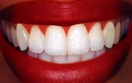 whiten-teeth-at-home